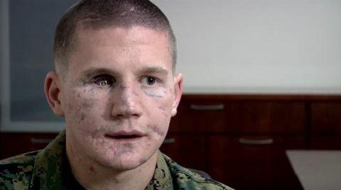 Kyle Carpenter: el soldado más joven en lograr la Medalla de Honor del Congreso